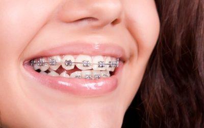 aparelho dentario para adultos