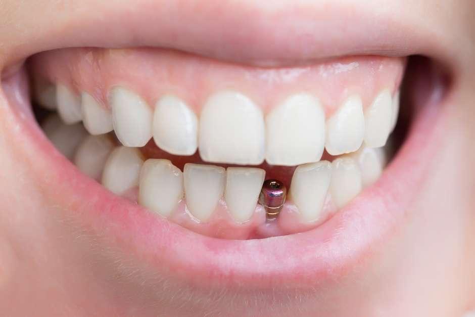 idade para implantes dentarios