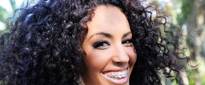 mitos e verdades sobre dentes tortos