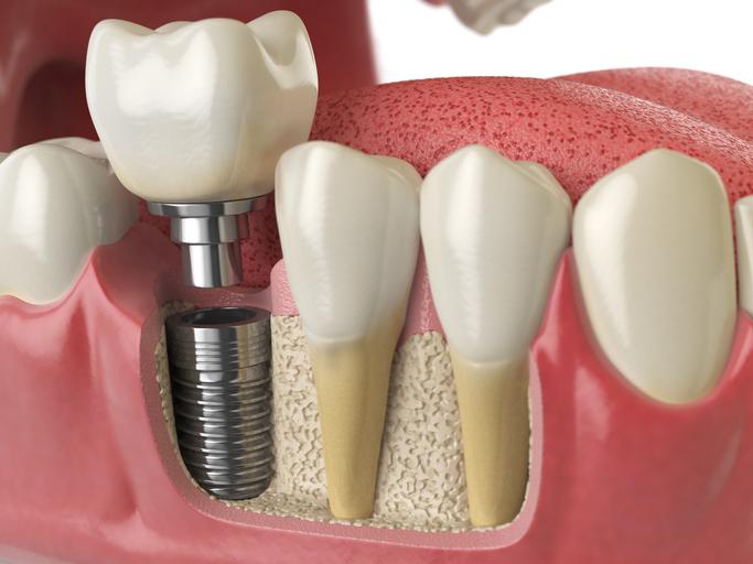 Preço Implantes Dentários